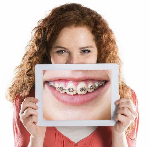 FastBraces (Orthodontics)