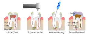 rootcanalsteps